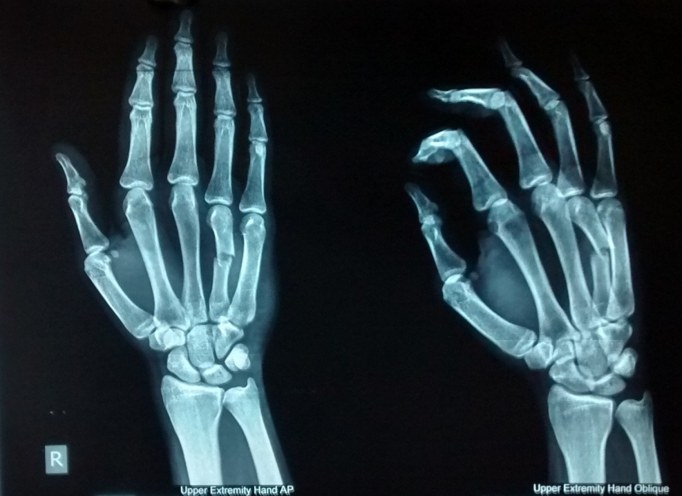 Metacarpal fractures treated by percutaneous Kirschner wire